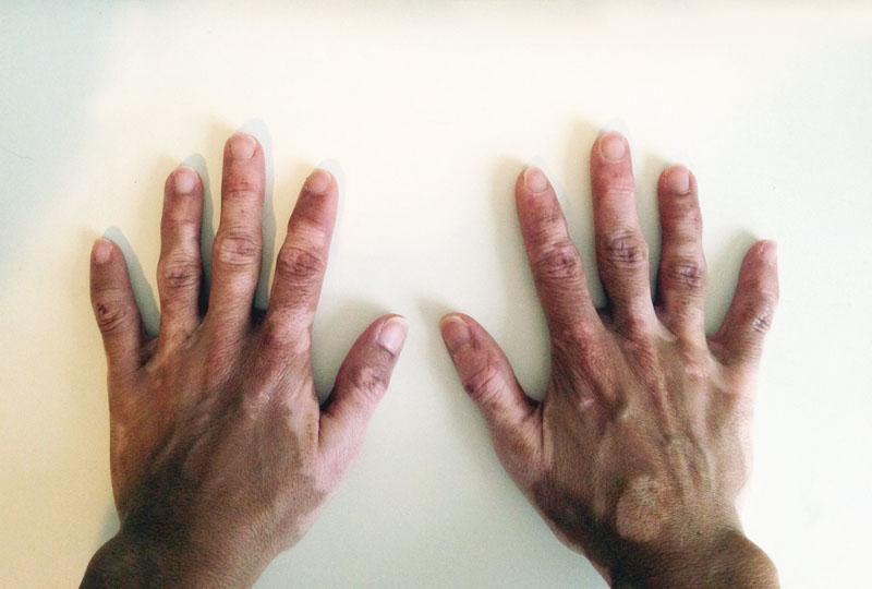 Vitilago Flat Hands